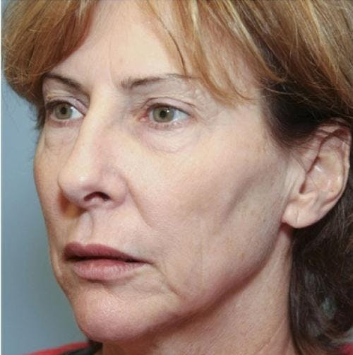 Face Lift Gallery - Patient 58490486 - Image 1