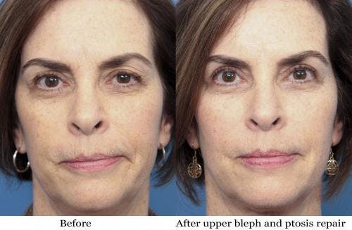 Eyelid Surgery Gallery - Patient 58490478 - Image 1