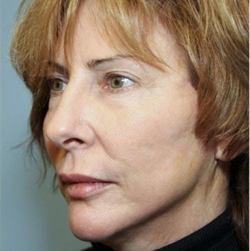 Face Lift Gallery - Patient 58490486 - Image 2