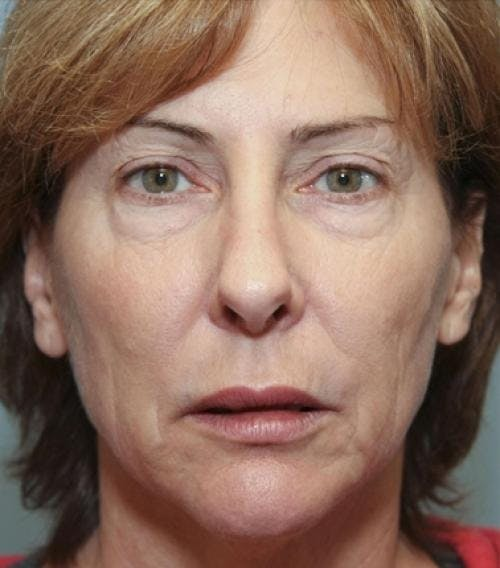 Face Lift Gallery - Patient 58490486 - Image 3