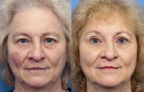 Eyelid Surgery Gallery - Patient 58490480 - Image 1