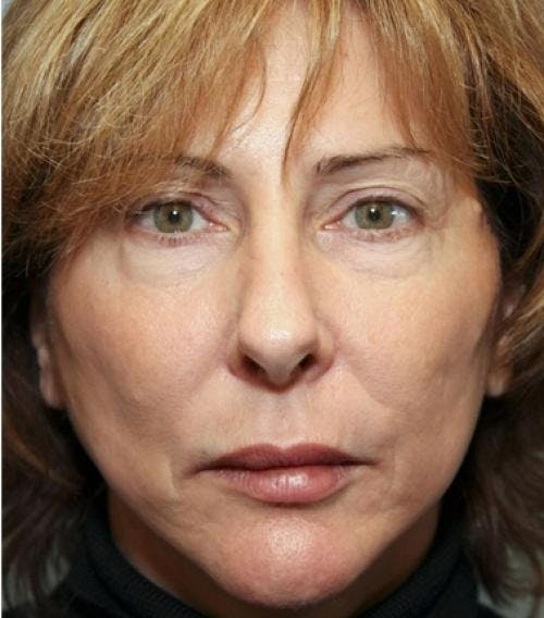 Face Lift Gallery - Patient 58490486 - Image 4