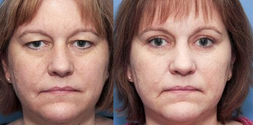 Eyelid Surgery Gallery - Patient 58490482 - Image 1
