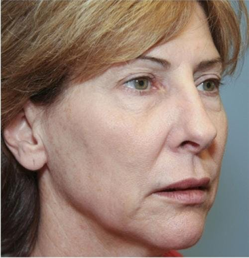 Face Lift Gallery - Patient 58490486 - Image 5