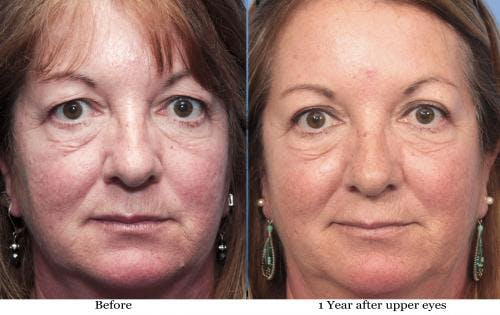 Eyelid Surgery Gallery - Patient 58490485 - Image 1