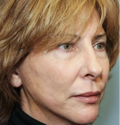 Face Lift Gallery - Patient 58490486 - Image 6