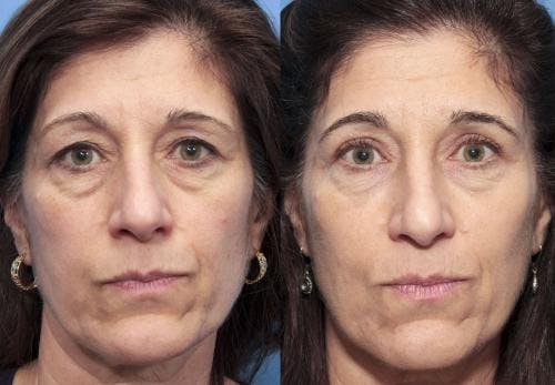 Eyelid Surgery Gallery - Patient 58490488 - Image 1