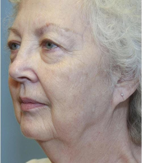 Face Lift Gallery - Patient 58490492 - Image 1