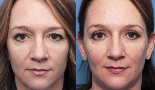 Eyelid Surgery Gallery - Patient 58490489 - Image 1