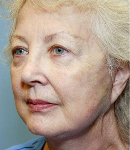 Face Lift Gallery - Patient 58490492 - Image 2