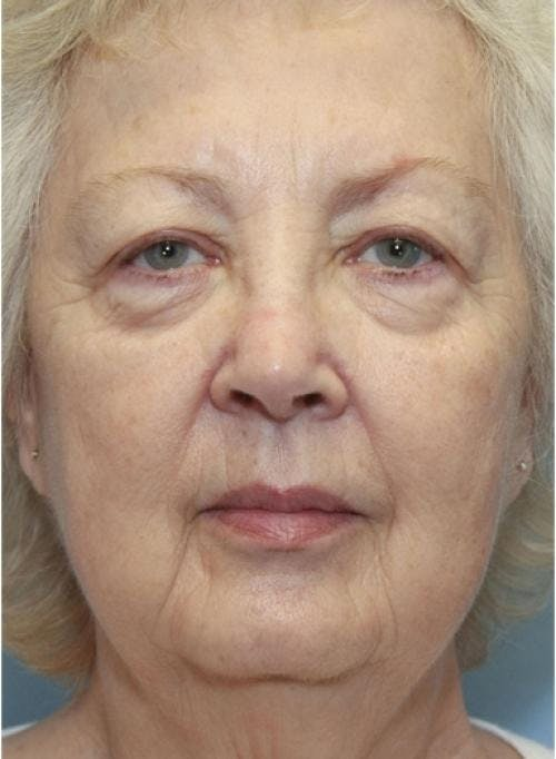 Face Lift Gallery - Patient 58490492 - Image 3