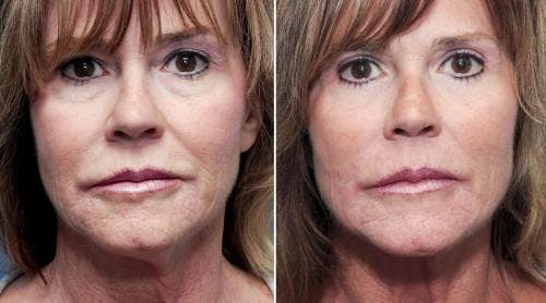 Eyelid Surgery Gallery - Patient 58490491 - Image 1