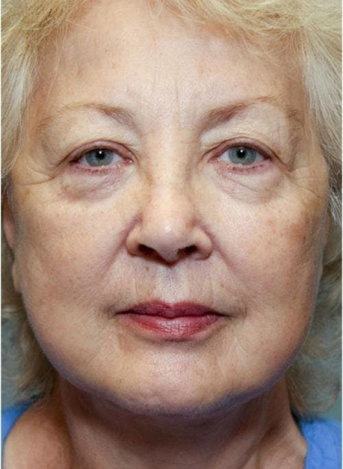Face Lift Gallery - Patient 58490492 - Image 4