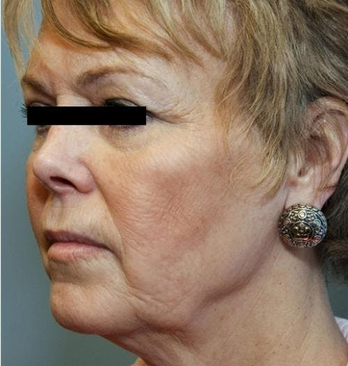 Face Lift Gallery - Patient 58490495 - Image 1