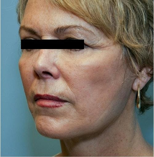 Face Lift Gallery - Patient 58490495 - Image 2