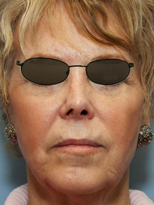 Face Lift Gallery - Patient 58490495 - Image 3
