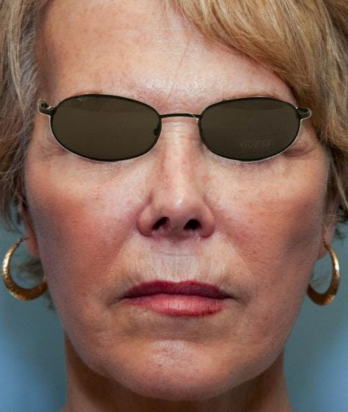 Face Lift Gallery - Patient 58490495 - Image 4