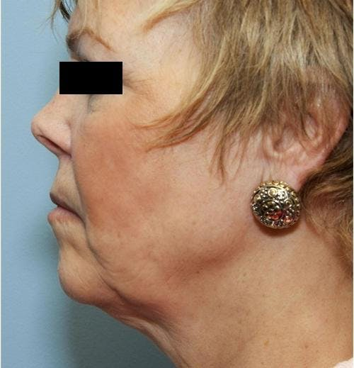 Face Lift Gallery - Patient 58490495 - Image 5