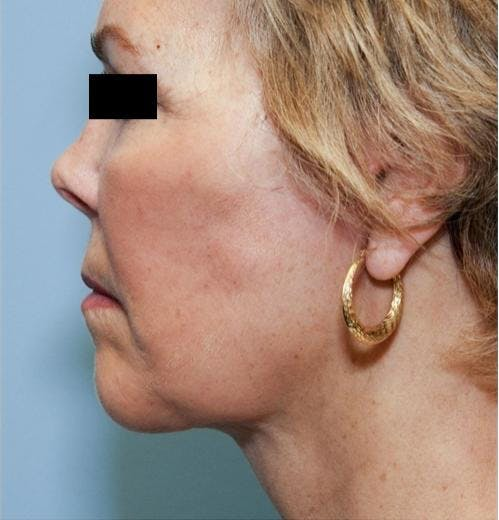 Face Lift Gallery - Patient 58490495 - Image 6
