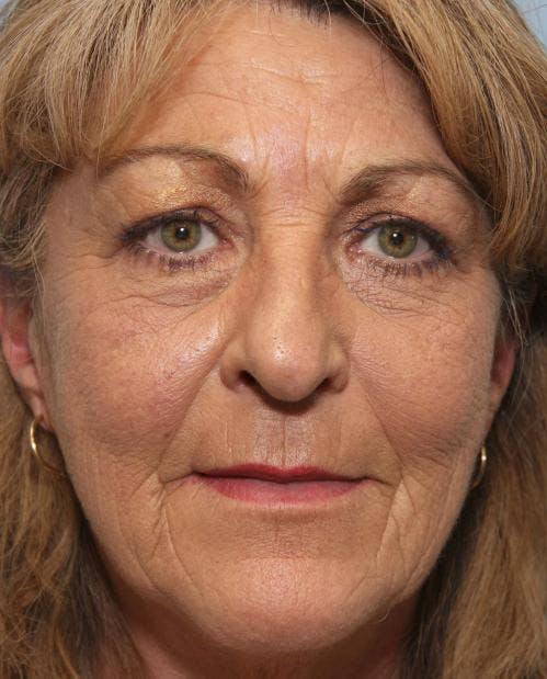 Face Lift Gallery - Patient 58490501 - Image 1