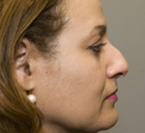 Rhinoplasty Gallery - Patient 58490500 - Image 1