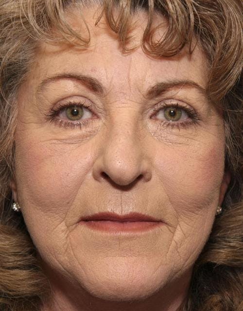 Face Lift Gallery - Patient 58490501 - Image 2