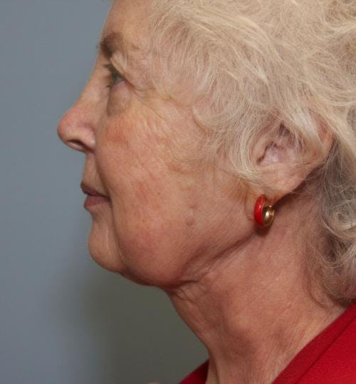Neck Lift Gallery - Patient 58490499 - Image 2