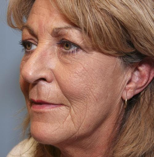Face Lift Gallery - Patient 58490501 - Image 3
