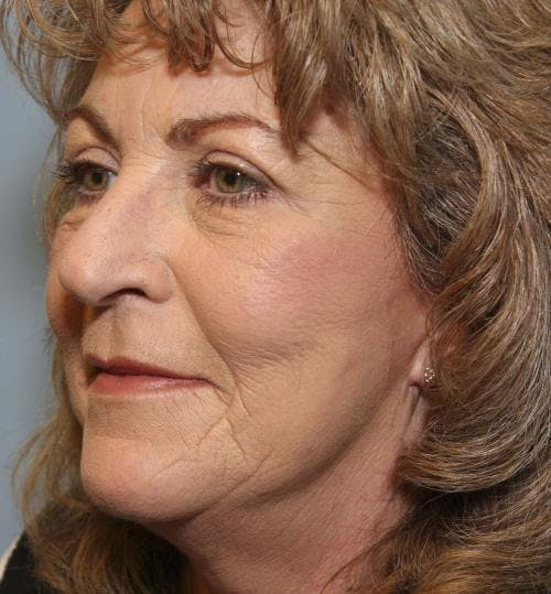 Face Lift Gallery - Patient 58490501 - Image 4