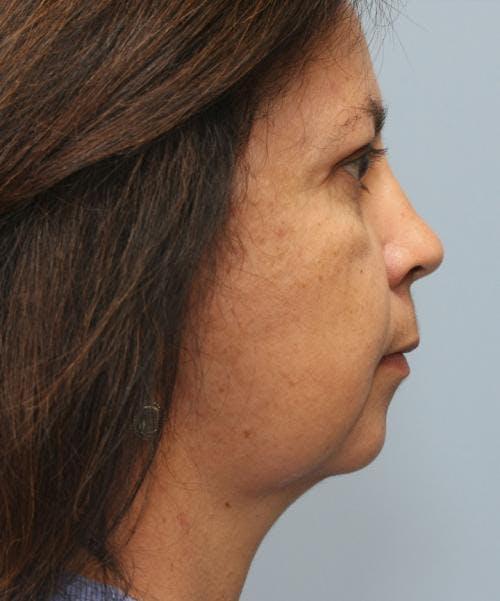 Neck Lift Gallery - Patient 58490502 - Image 2