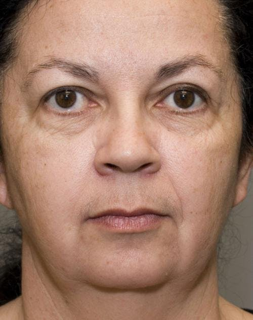 Face Lift Gallery - Patient 58490503 - Image 1