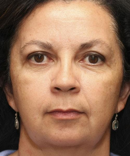 Face Lift Gallery - Patient 58490503 - Image 2