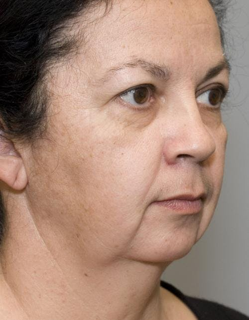 Face Lift Gallery - Patient 58490503 - Image 3