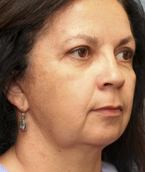 Face Lift Gallery - Patient 58490503 - Image 4