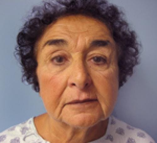 Neck Lift Gallery - Patient 58490506 - Image 3