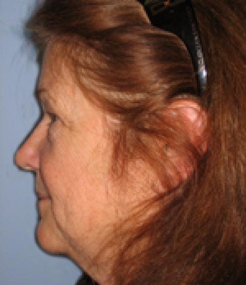 Face Lift Gallery - Patient 58490507 - Image 3