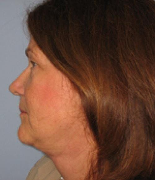 Face Lift Gallery - Patient 58490507 - Image 4