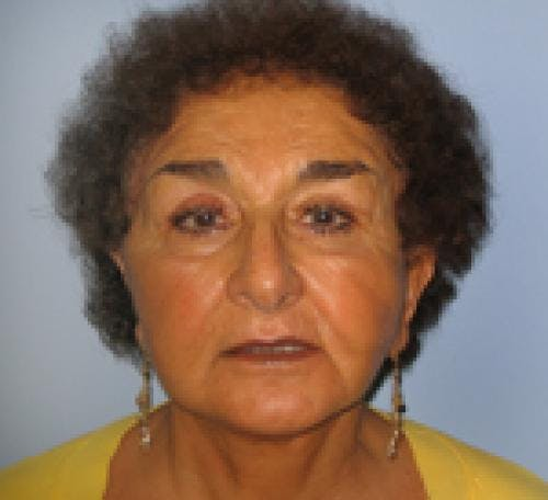 Face Lift Gallery - Patient 58490509 - Image 2