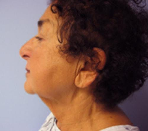 Face Lift Gallery - Patient 58490509 - Image 3