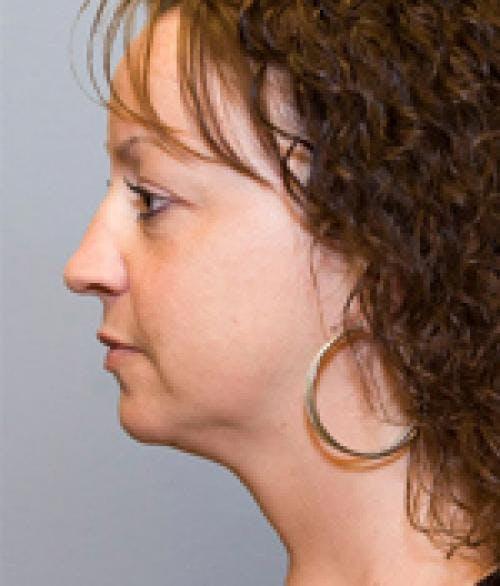 Neck Lift Gallery - Patient 58490508 - Image 2