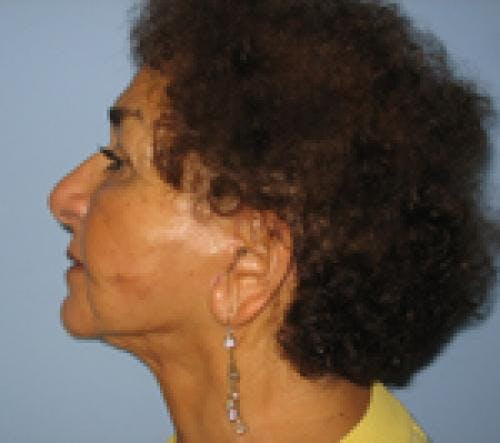 Face Lift Gallery - Patient 58490509 - Image 4