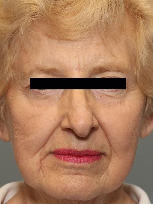 Face Lift Gallery - Patient 58490510 - Image 1