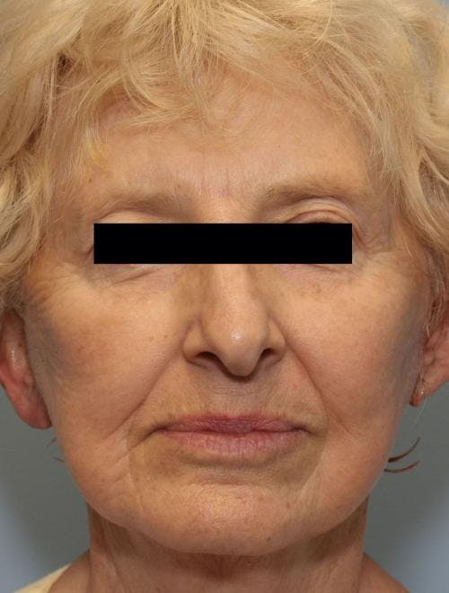 Face Lift Gallery - Patient 58490510 - Image 2