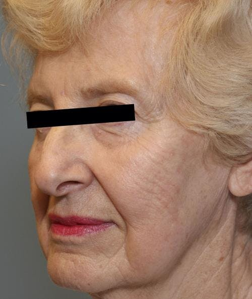 Face Lift Gallery - Patient 58490510 - Image 3