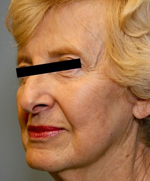 Face Lift Gallery - Patient 58490510 - Image 4
