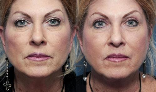 Eyelid Surgery Gallery - Patient 58490516 - Image 1