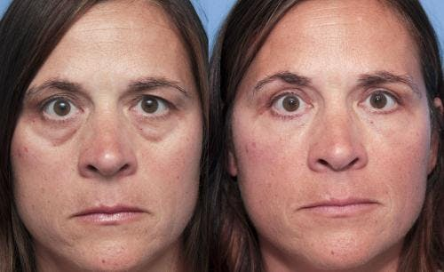 Eyelid Surgery Gallery - Patient 58490517 - Image 1