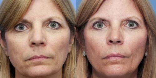 Eyelid Surgery Gallery - Patient 58490520 - Image 1