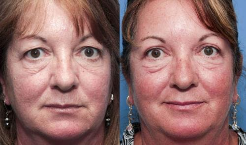 Eyelid Surgery Gallery - Patient 58490521 - Image 1