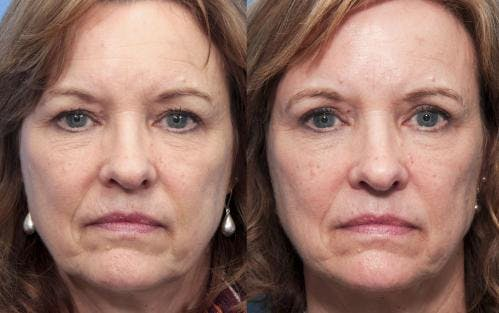 Eyelid Surgery Gallery - Patient 58490522 - Image 1
